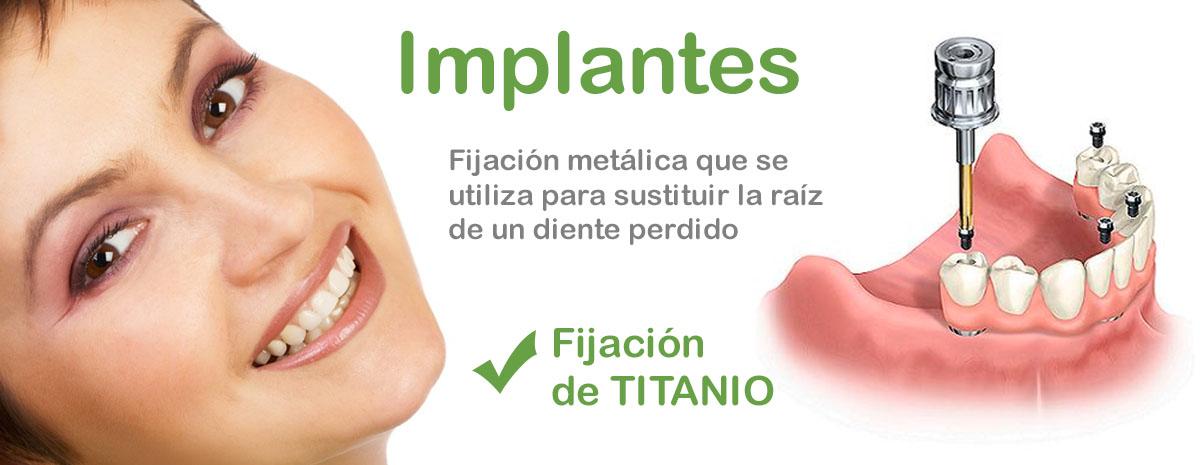 Caredent dentista Albacete implantes titanio
