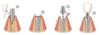 esquema implantes dentales