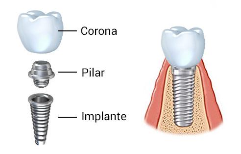 partes del implante