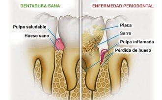 diferencias entre un diente sano y la periodontitis