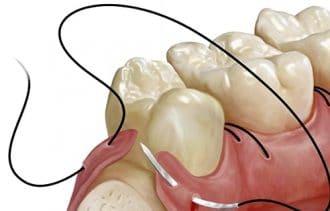 cirugía bucal: suturado de herida
